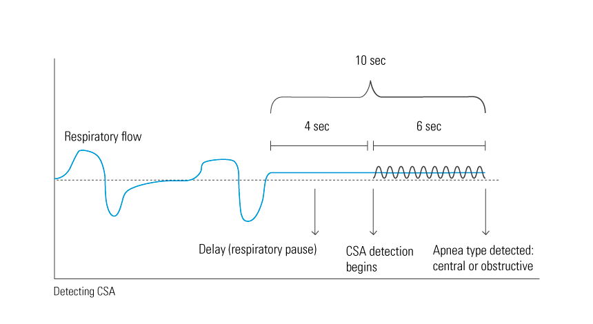CSA-graph